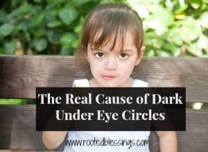 Dark Under eye circles