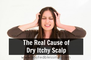 dry itchy scalp
